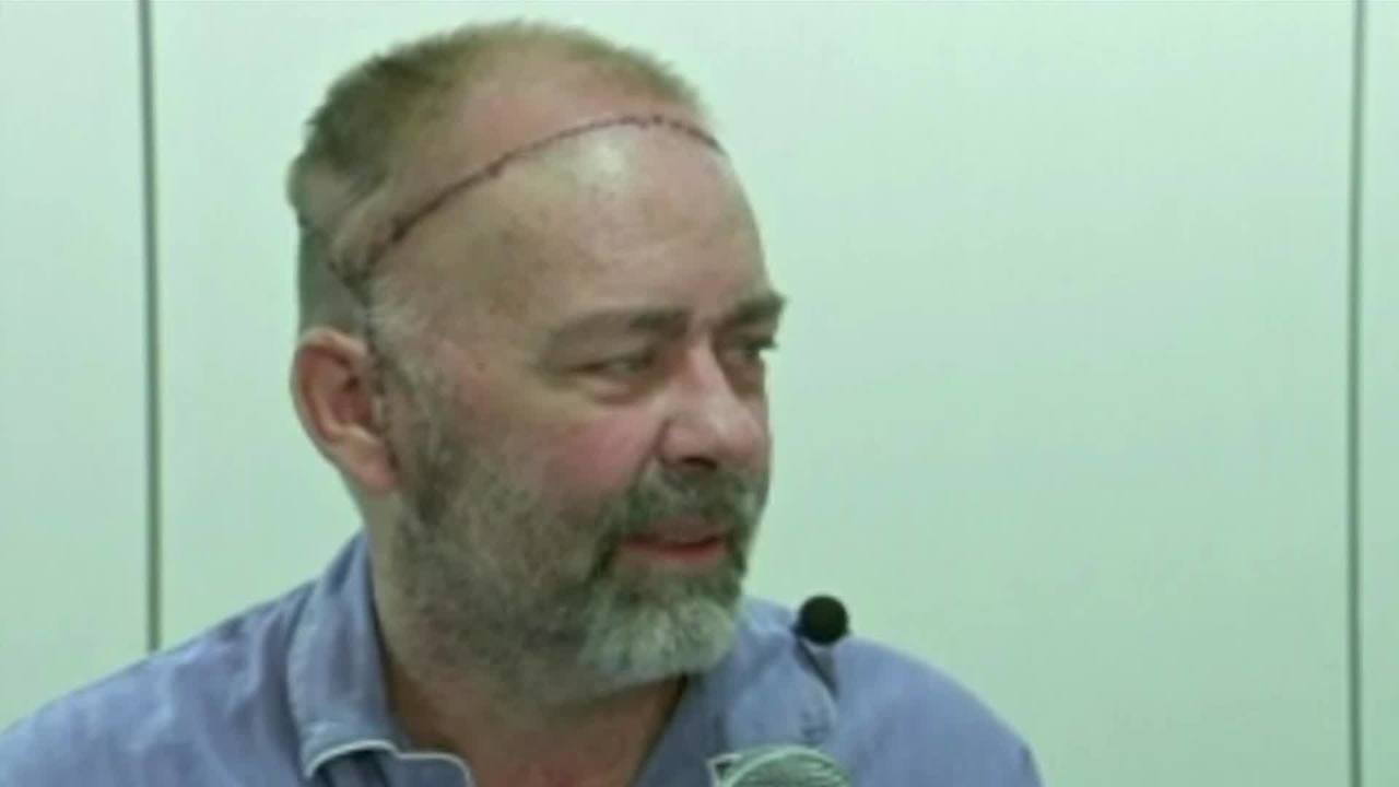 Texas doctors perform first skull and scalp transplant KHON